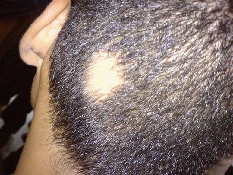 ریزش موی سکه ای در مردان