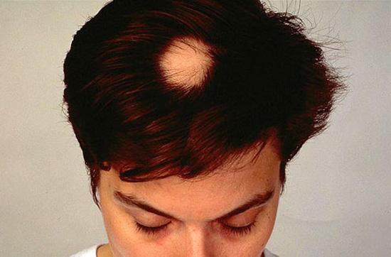 ریزش موی سر زنان