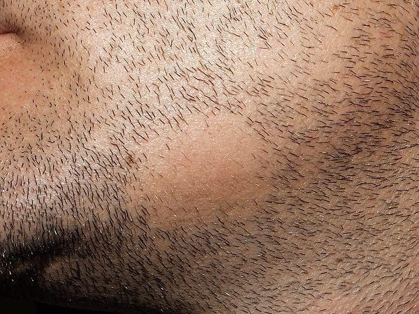 ریزش موی سکه ای در ریش