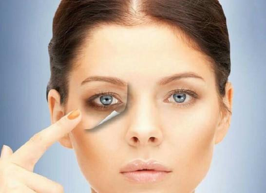 کربوکسی تراپی موثر در از بین بردن حلقه های تیره زیر چشم