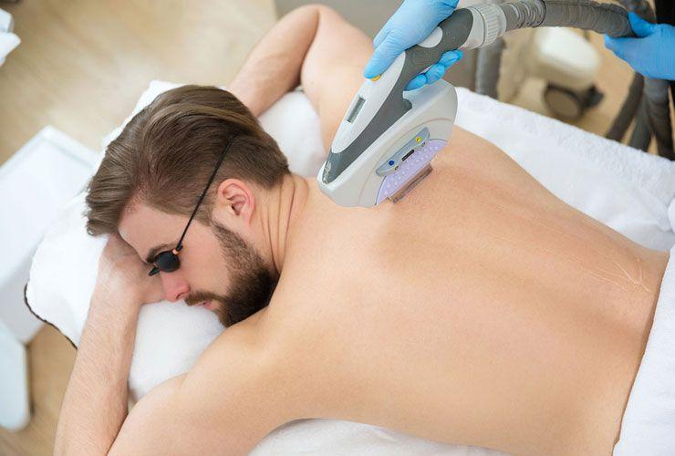 عوارض جانبی لیزر موهای زائد مردان