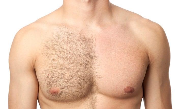مزایای لیزر موهای زائد مردان