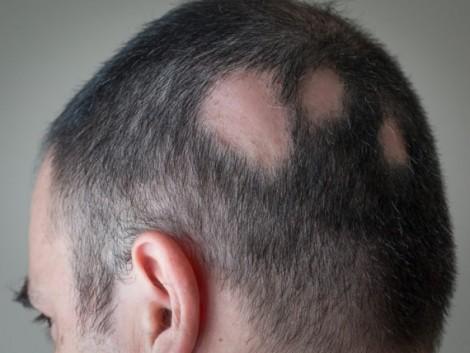 هر آنچه درباره ریزش موی سکه ای باید بدانید