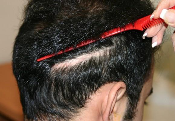 کاشت مو در جای زخم و بخیه