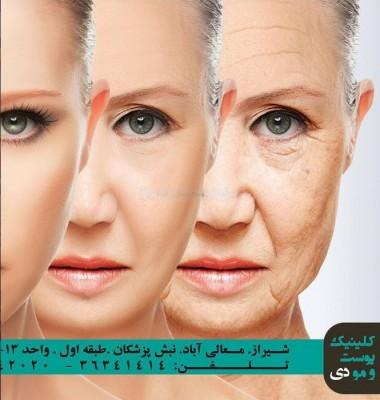 تزریق ژل و چربی و بوتاکس در شیراز
