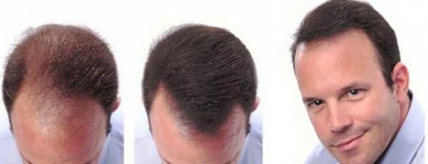 درمان ریزش مو با لیزر LLLT