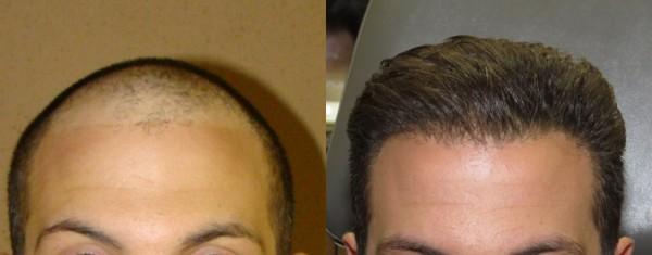 هزینه کاشت مو چقدر است؟