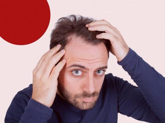 کاشت مو در اردبیل