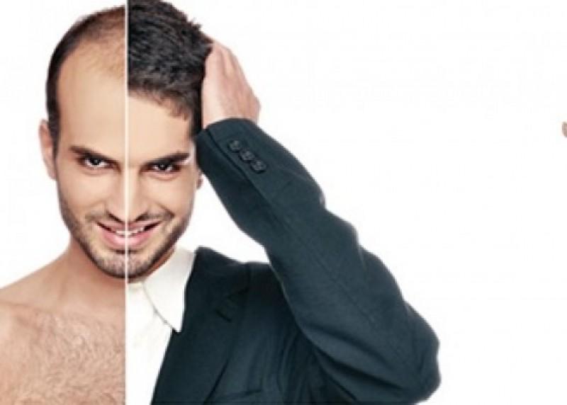 کاشت مو sut | روشهای کاشت مو